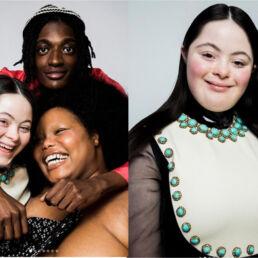 Prima modella Gucci con sindrome di Down: chi è Ellie Goldstein