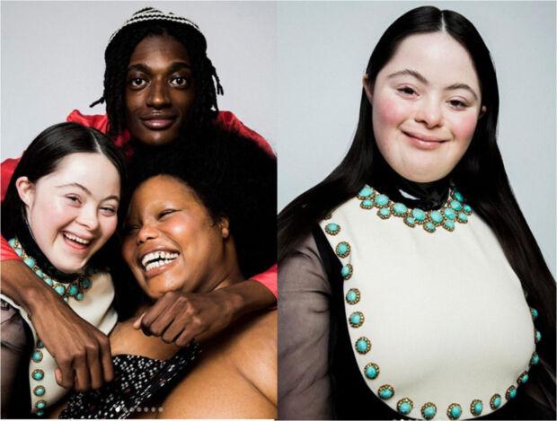 Si chiama Ellie Goldstein, è la prima modella Gucci con sindrome di Down ed è parte di un progetto ideato per rivoluzionare i canoni di bellezza